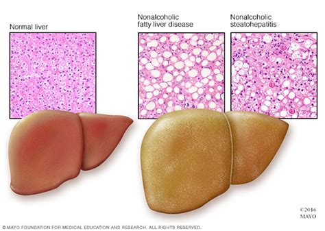 symptoms of an enlarged liver picture 3