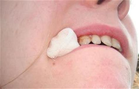 pain in cheek area after wisdom teeth removal picture 7
