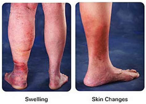 fluid retention and your skin picture 10