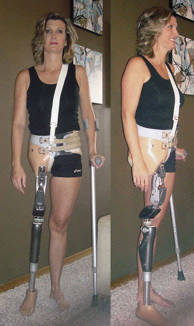 amputee women prosthetic leg picture 6