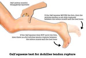 ankle joint effusion and ruptured achilles tendon picture 9