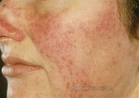 cystic acne, melasma, decreased libido picture 10