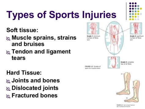 acute muscle tear picture 13