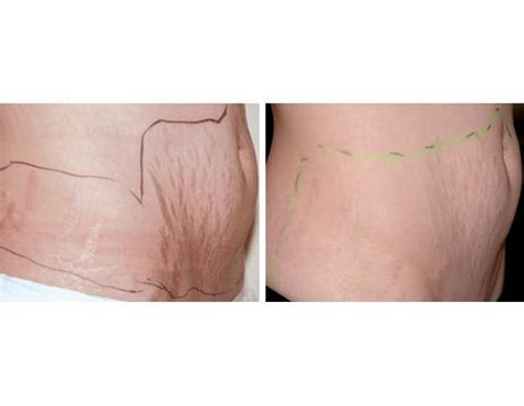 reducing abdominal fat and stretch marks picture 25