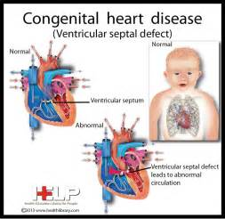 congenital heart condition in adolescent with high blood picture 1