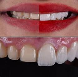 cost of h veneers picture 15