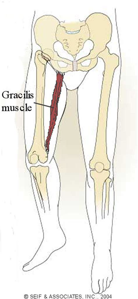 cause of muscle pain in thighs picture 9
