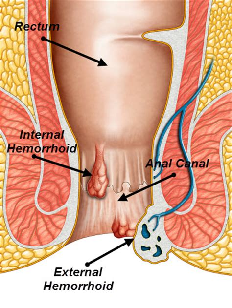 Hemroid cream and blood pressure picture 9
