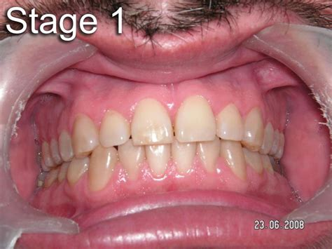 dull ache front teeth unknown picture 13