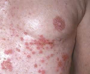 infectous skin disease on breasts picture 3