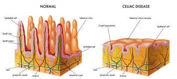 celiac bruise diet picture 17