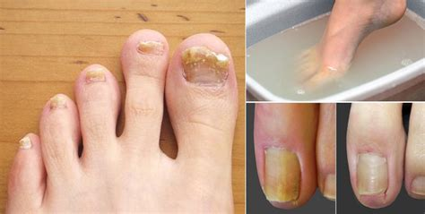 does nail fungus affect overal health picture 15