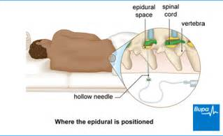 epidural pain relief picture 14