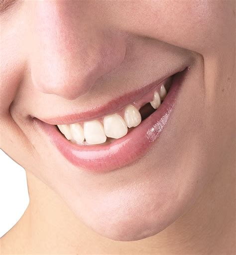 photos of people with teeth missing picture 18