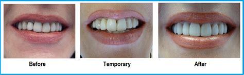 false teeth permenant picture 11