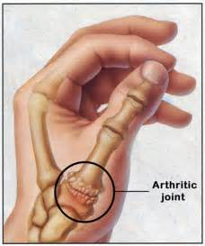 thumb joint pain picture 9