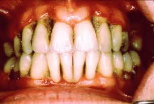 does chewing tobacco cause joint pain picture 5