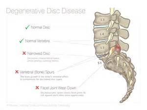 degenerative disc joint picture 17