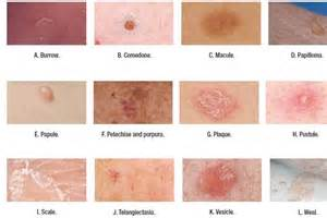 different types of skin sores picture 2
