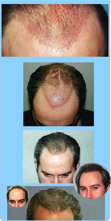male testosterone therapy and hair loss picture 14
