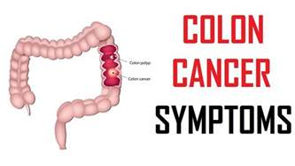 Colon cancer sympyoms picture 10