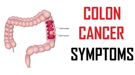 colon cancer signs picture 13