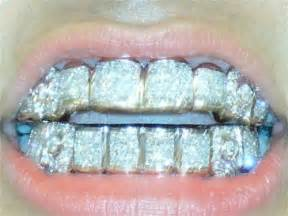 diamond teeth grills picture 1