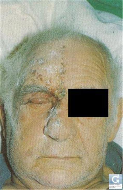 allergy sa balat dulot ng kemikal picture 8