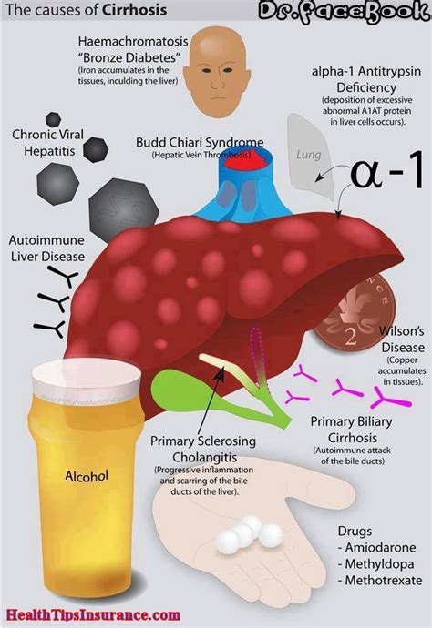 causes of liver failure picture 13