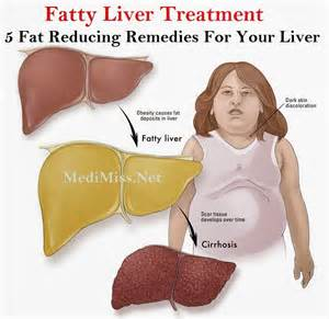 fatty liver treatment picture 1