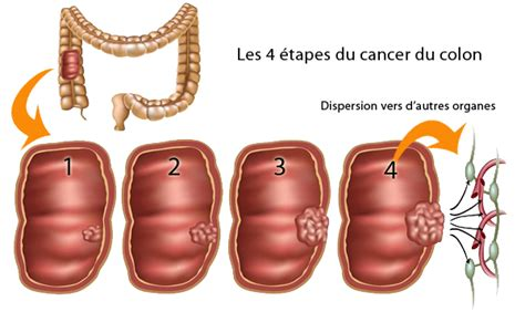 resection liver metastases colon cancer picture 13