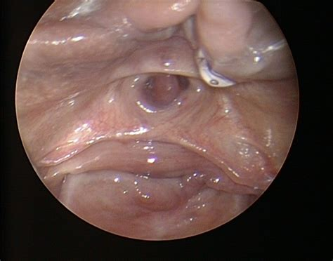 penis catheter medical sex picture 11