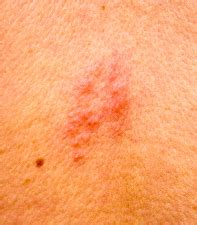 pictures of herpes shingles picture 13
