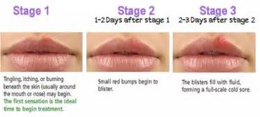 treatment for oral herpes picture 7