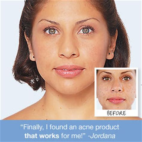 l'oreal special care acne response daily acne regimen picture 5