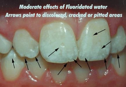 fluoride damaged childrens teeth picture 9