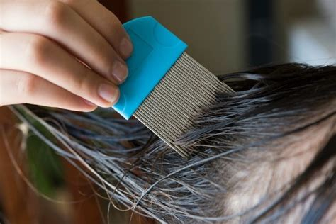 herbal treatments for lice picture 11