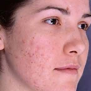 acne scarring on face what to do picture 9