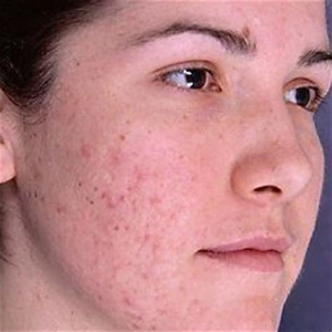 acne scarring on face what to do picture 1