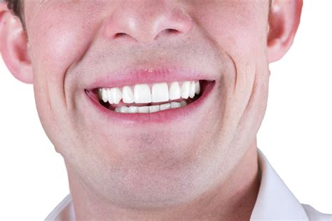 fort worth tooth whitening picture 9