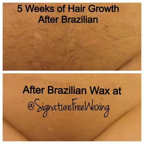 waxing hair not growing picture 1