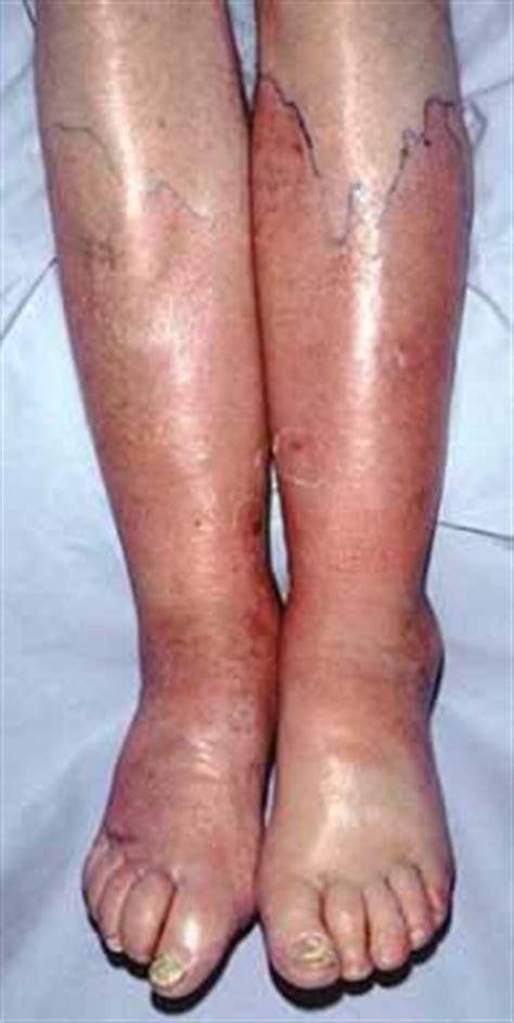 weight loss for edema pateints picture 3
