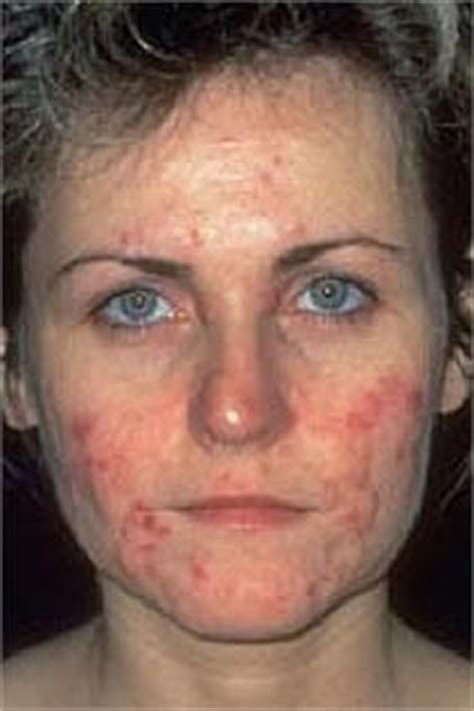 adult acne picture 9