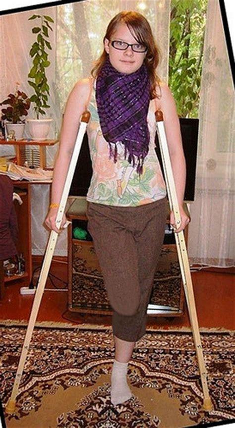 amputee women sak picture 18