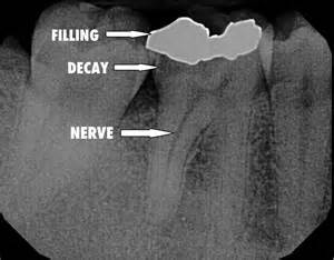 cavity cover for teeth picture 18