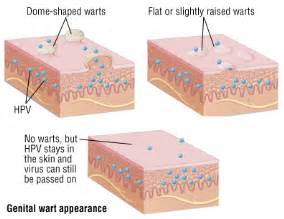 genital wart symptoms picture 6