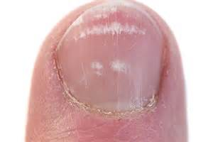 losing toenail due to fungus 2014 picture 11