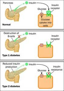 diabete and skin picture 7