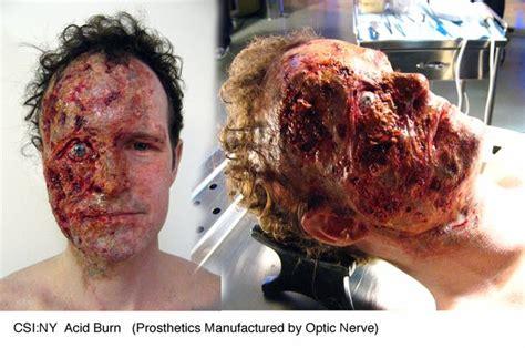 acid skin burn picture 5