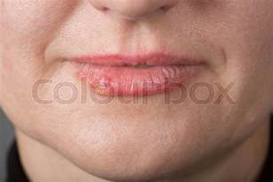does the sores of herpes heal within a picture 14